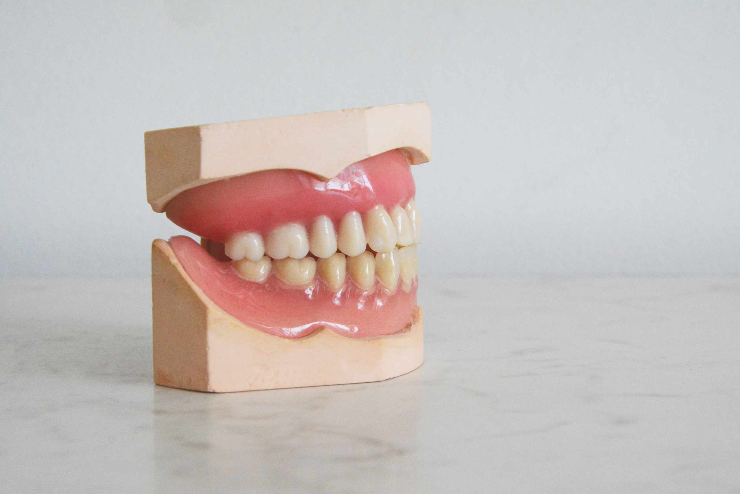 Age to Get Braces